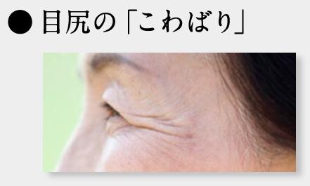 目尻のシワ 改善