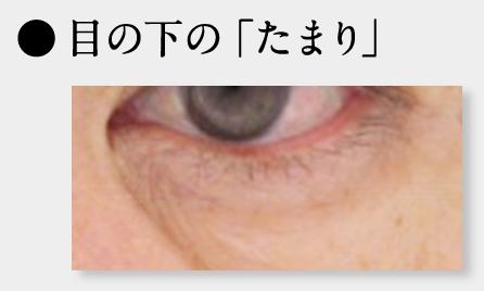 目の下のたるみ